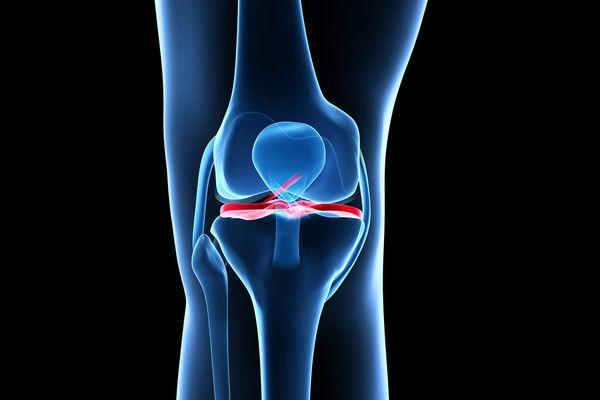 Повреда на предниот вкрстен лигамент (ACL) – дипл. физиотерапевт Димитар Антевски