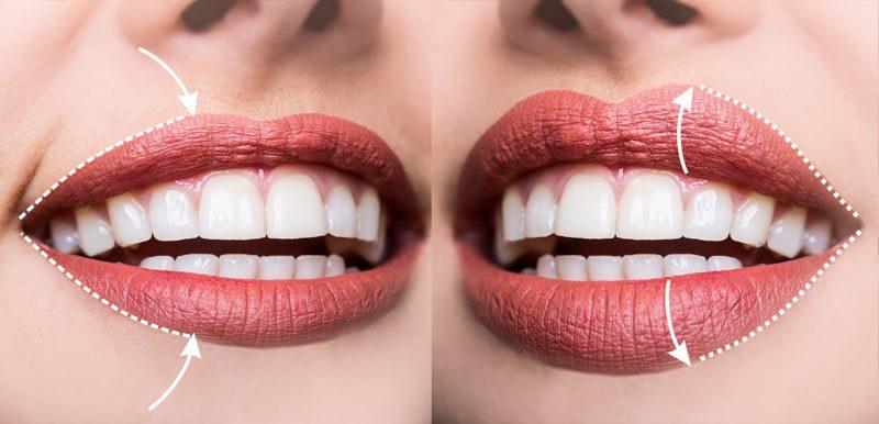 Нов револуционерен метод на ласерско зголемување на усните со Фотона ласерот